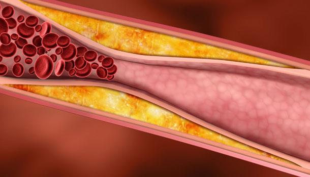 arteriya